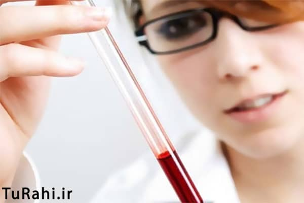 آزمایش چکاپ قبل بارداری